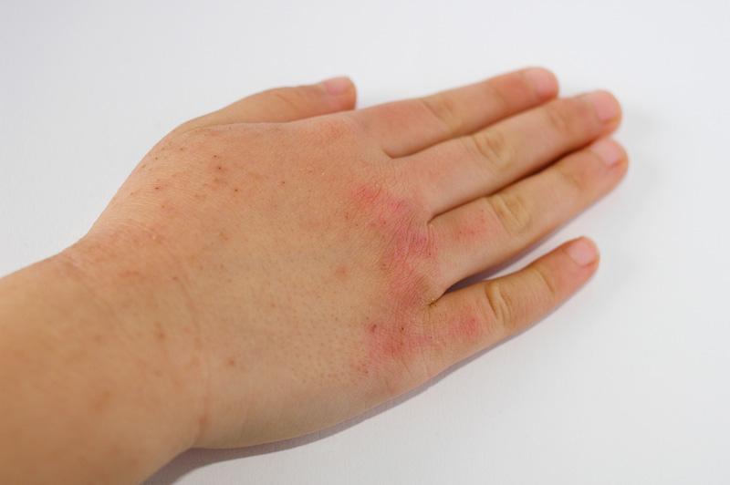 皮膚の症状