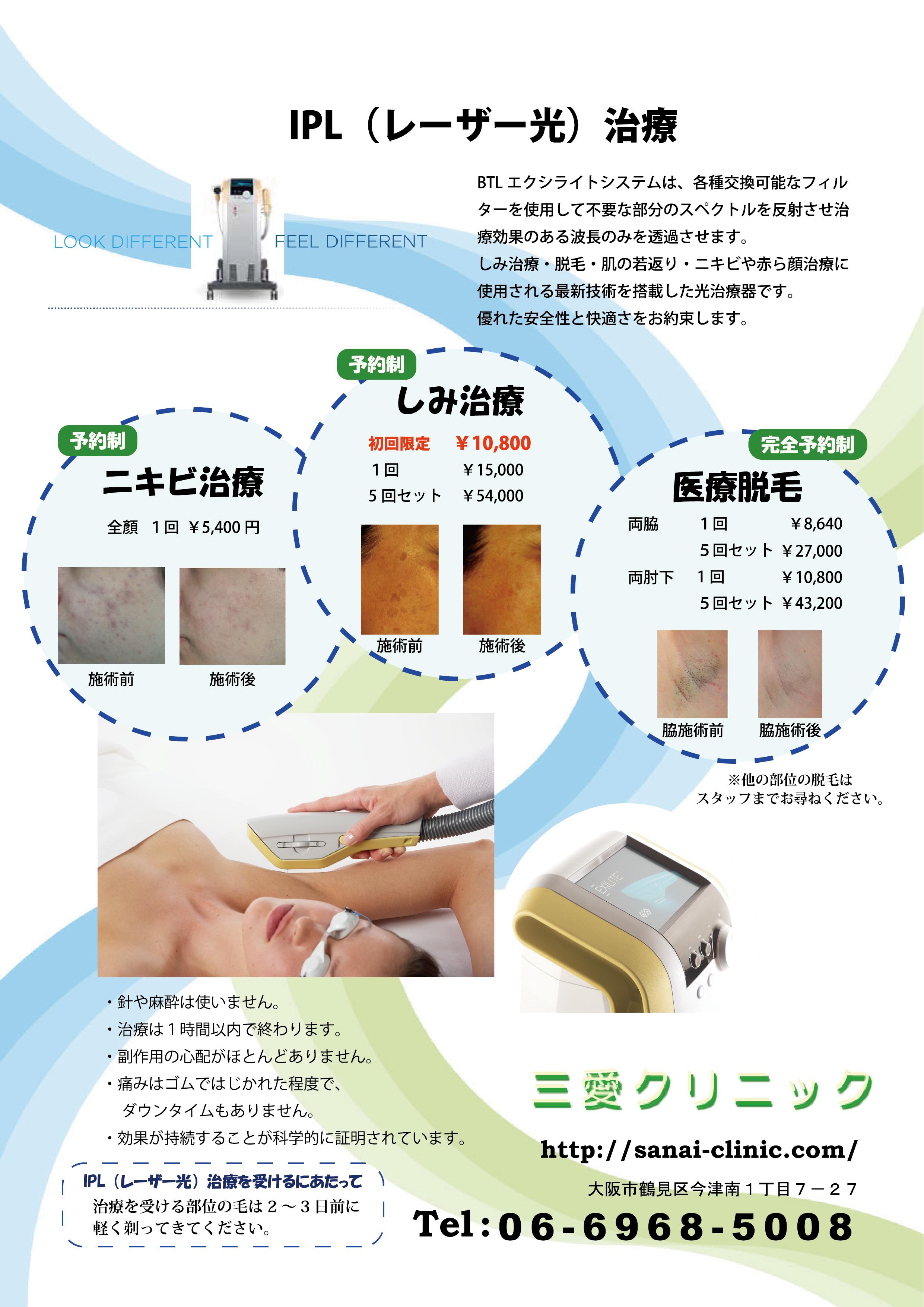 IPL(レーザー光)治療