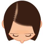 びまん症脱毛